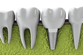 Dental Implants Morristown TN