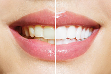 Teeth Whitening Dentist Morristown TN