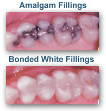 White Dental Fillings Morristown TN